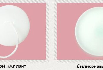 Солевый и силикованный имплант