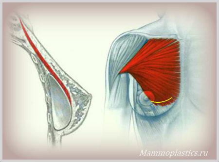 Этиология уменьшения груди