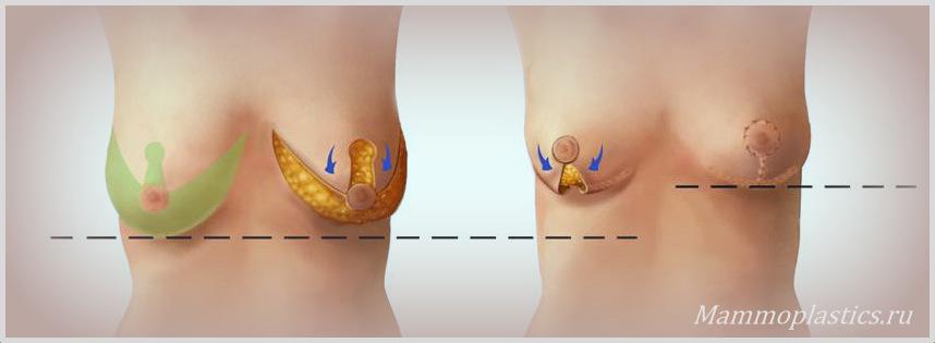 Техники операции по подтяжки груди