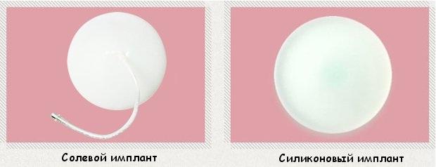 Импланты для маммопластики: круглые и каплевидные, солевые и силиконовые, гладкие и текстурированные