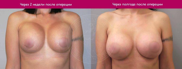 Почему после маммопластики импланты располагаются слишком высоко, а сосок смотрит вниз?
