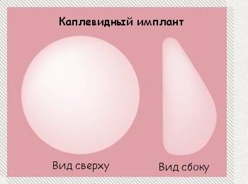 Каплевидный имплант