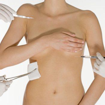 Лимфорея после маммопластики
