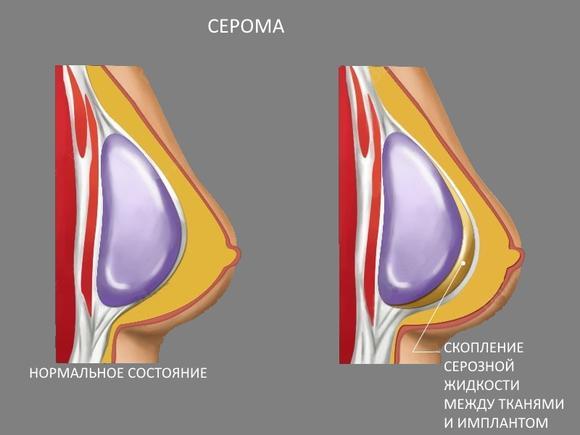 Выделение серозной жидкости из шва после маммопластики: что это и как лечится?