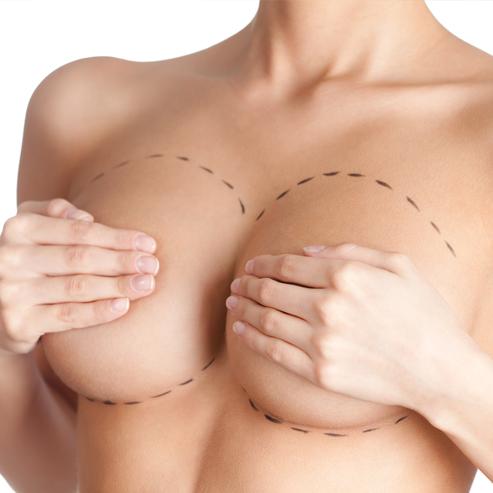 Вертикальная маммопластика